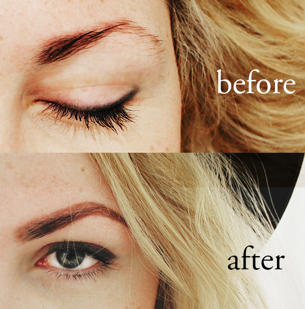 brows before after